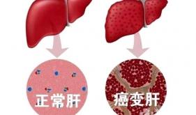 预防肝癌要从生活起居做起