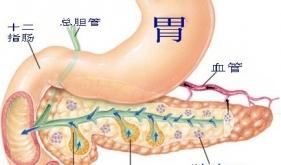 急性重症胰腺炎(SAP)的治疗