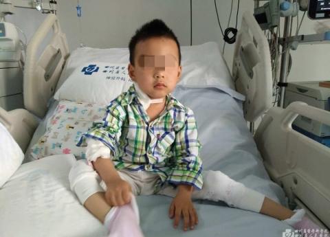 华西都市报:医院千里转运人工肺 30小时救回男童