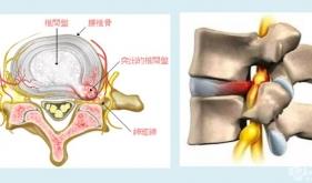 腰椎间盘突出症康复治疗