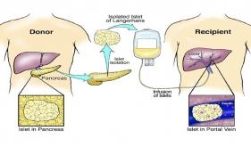 同种异体胰岛细胞移植治疗糖尿病