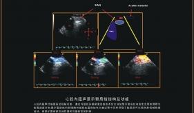 窦房结结构及功能