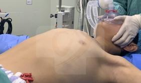 中国胸壁外科联盟创始人王文林主任来我院指导手术治疗