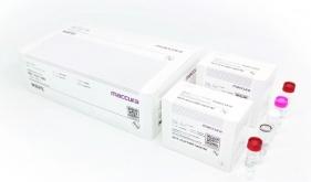足球竞彩网杨正林团队成功研制出新冠病毒的早期快速准确检测诊断试剂盒