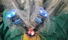 机器人遇上单孔,开启微创新时代
