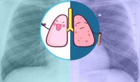 """肺上长结节是不是就""""癌""""起了?"""