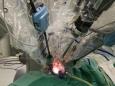 机器人微创中心完成西部首例后腹腔入路机器人单孔肾切除术