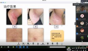 四川省质控中心组织全省银屑病规范化诊疗学术交流会