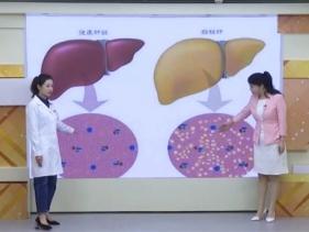医生来了20201220:引发肝癌的秘密