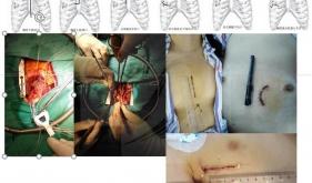 胸部小切口微创手术