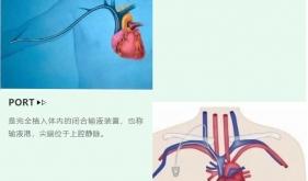 乳腺癌患者的化疗静脉通路啷个选?